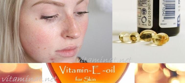 زيت- فيتامين -E -لعلاج -حب- الشباب