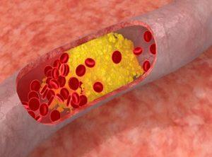 فيتامين -B12 -يحافظ -على- القلب
